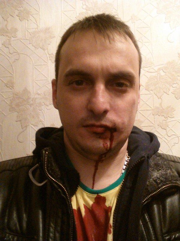 """В Самаре избит активист движения """"Дороги63"""""""